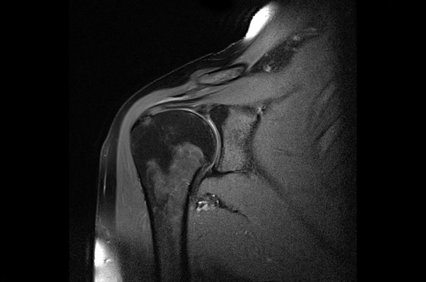 Повреждение плечевого сустава мрт диагностика травма колена выверт коленного сустава на бок